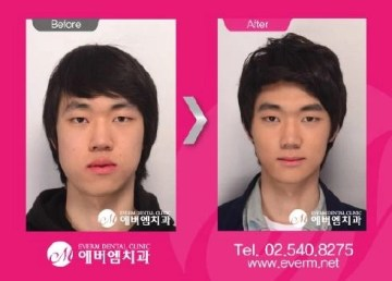 plastic-surgery-09