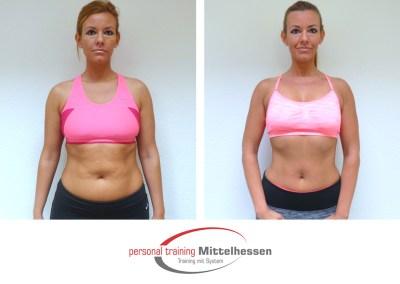 Körperfett reduzieren – Ergebnis von Michelle E