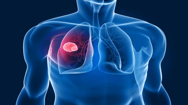 Tumori Solidi: scoperti potenziali farmaci per terapie più mirate