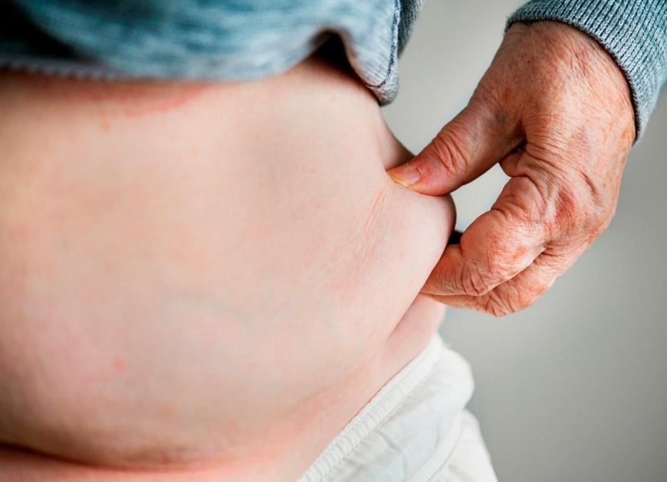 Managing Stomach Stretching After Gastric Sleeve