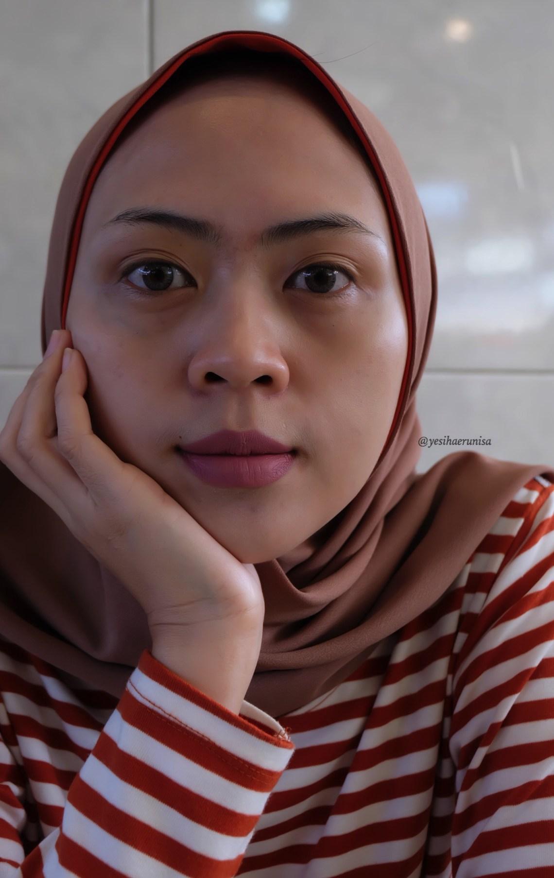Ms Glow Clinic Bandung
