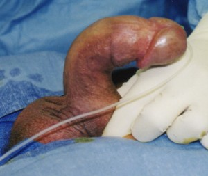 Peyronies pictures are often taken just prior to surgery; this one showing an acutely curved penis of approximagtely 90 degrees