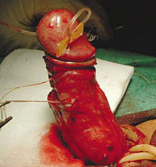 Peyronie's surgery to correct penile curvature should only be done as a last resort due to the risk of complications and recurrence if this is the only Peyronie's disease treatment used