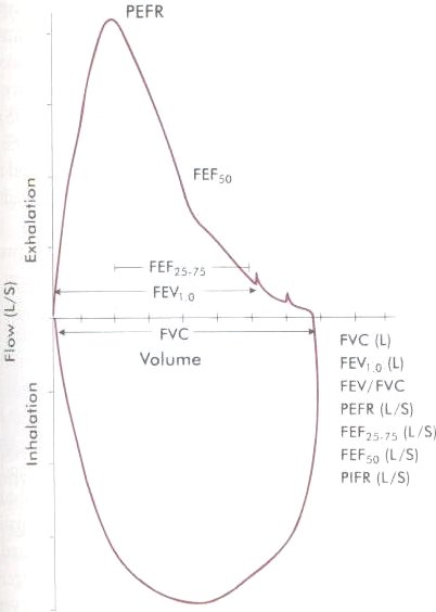 1 Above data represented as Flow-Volume Lo op
