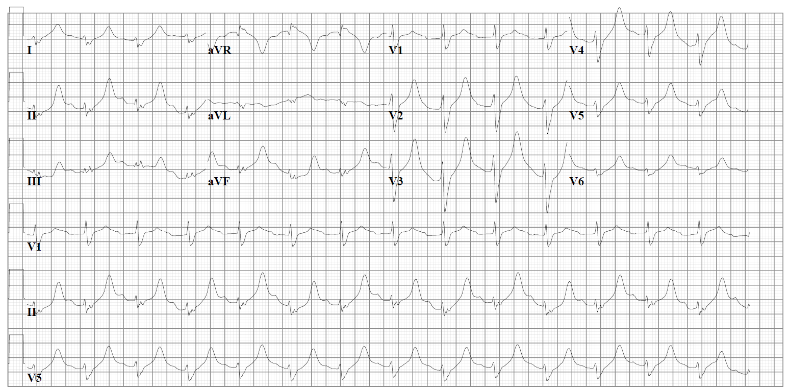 10: The Pharmacist and the ECG Should Be Friends