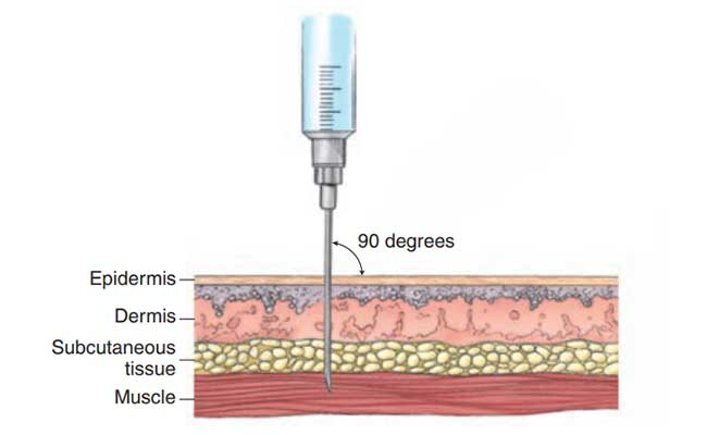 Picture showing the correct way to administer an IM injection