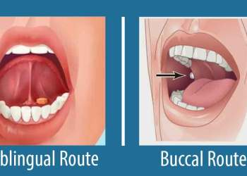 Featured image for Buccal and Sublingual Routes of Administration: Advantages and Disadvantages