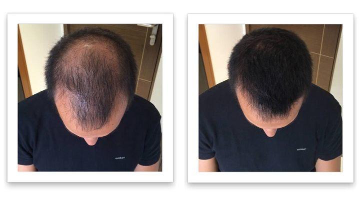 Hair Fortin for baldness