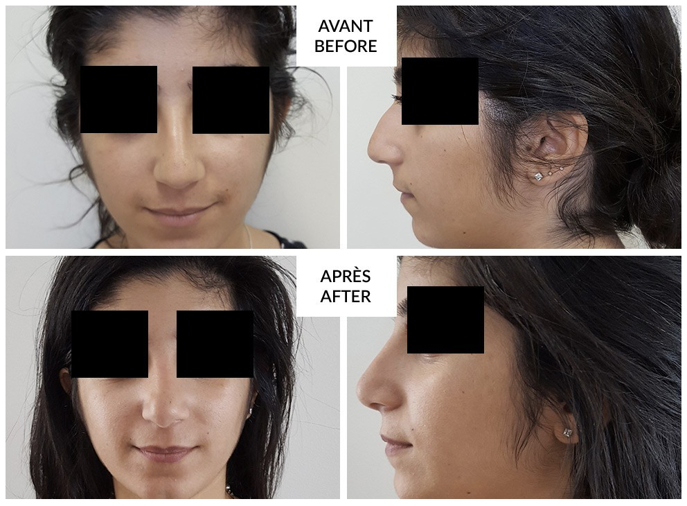 rhinoplasty in montreal before and after phi surgery