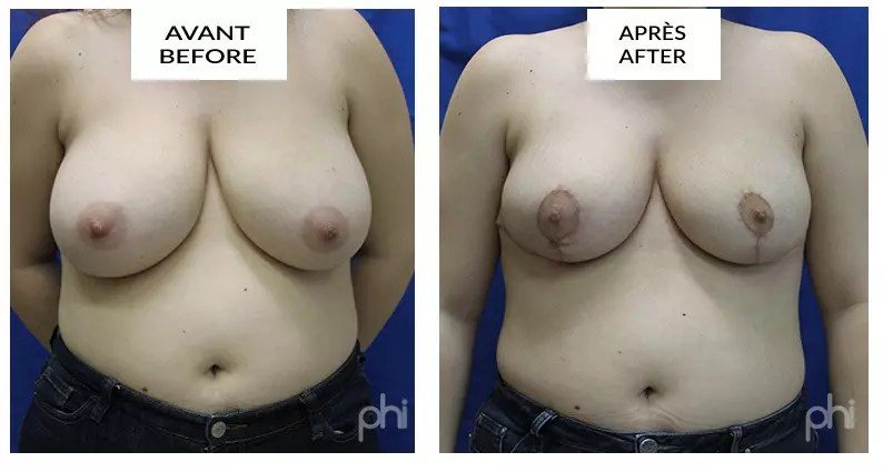 Breast Reduction Before After Montreal