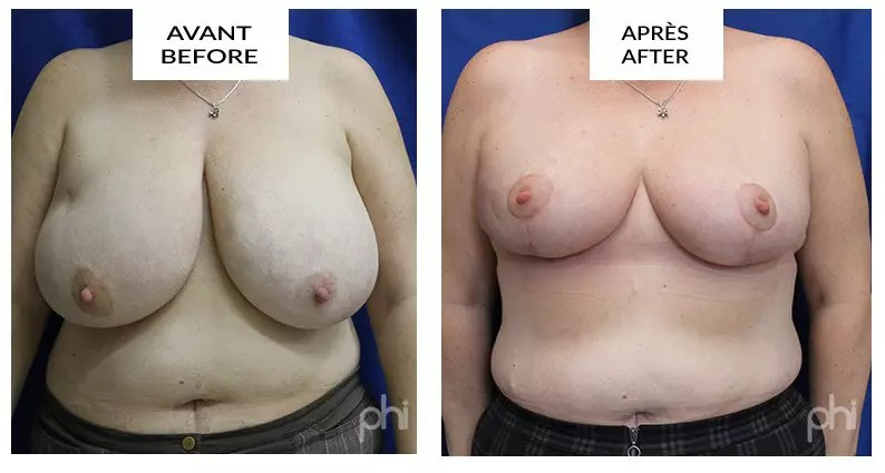 Breast Reduction montreal