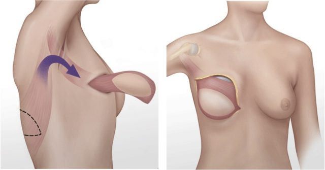 back flap latissimus dorsi Phi Plastic Surgery