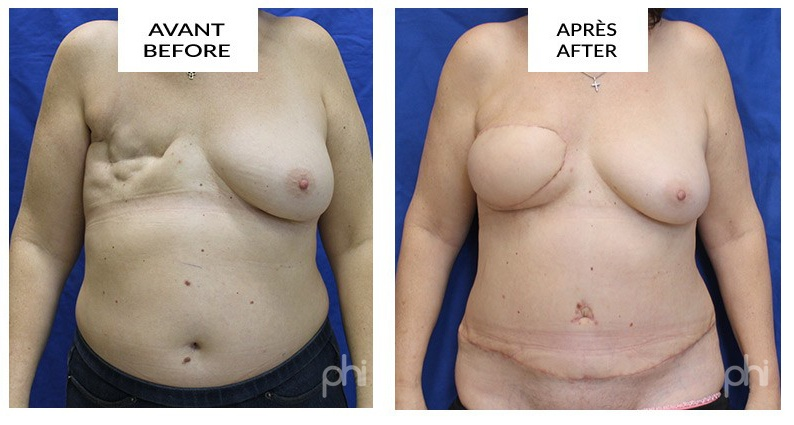 breast-reduction-augmentation-lift-mastopexy-reconstruction ;diep