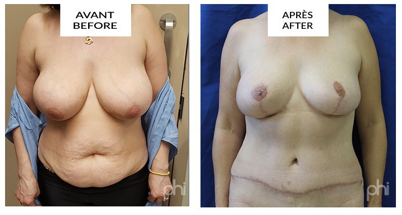 diep-breast-reduction-augmentation-lift-mastopexy-reconstruction (23)