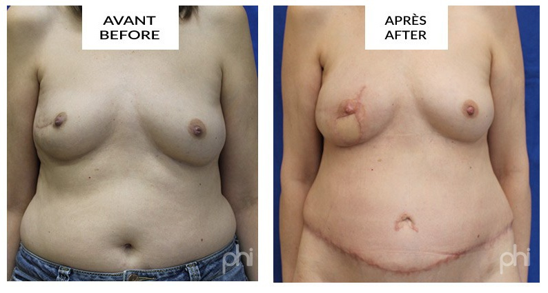diep-breast-reduction-augmentation-lift-mastopexy-reconstruction (26)