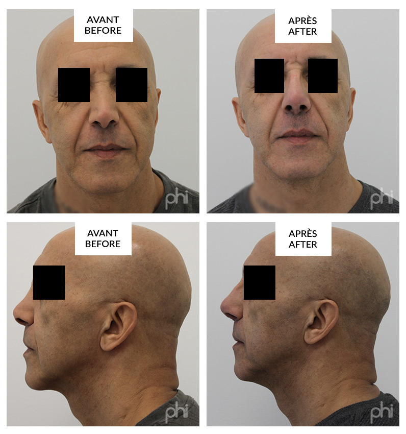 rhinoplasty before and after phi surgery