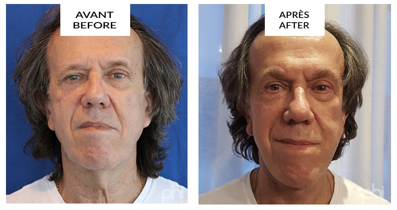facelift-before-after-montreal2