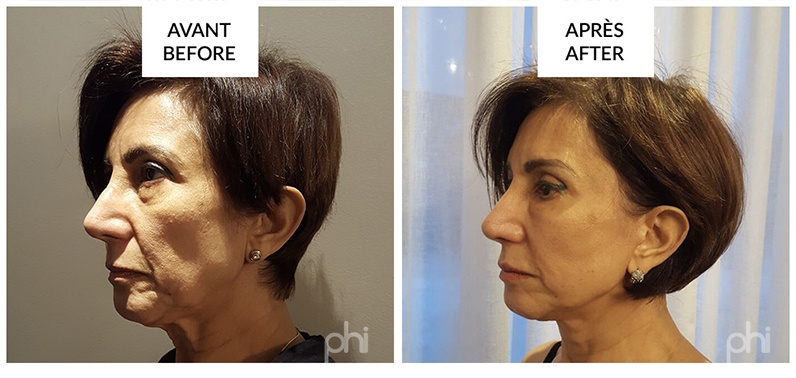 facelift-before-after-montreal1