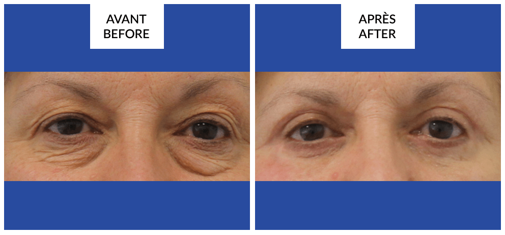 blepharoplasty surgery before and after phi surgery