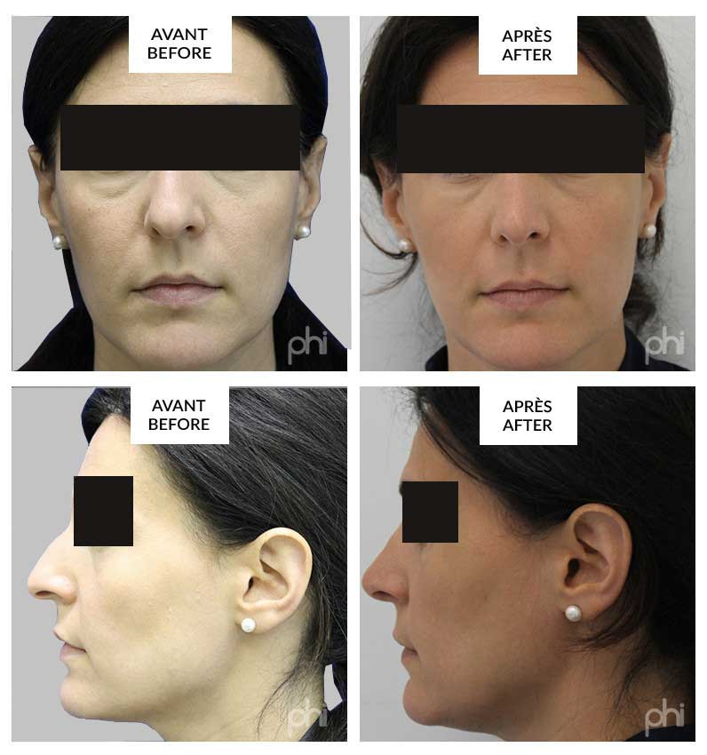 montreal rhinoplasty before and after phi surgery