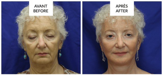 facelift surgery in montreal phi surgery