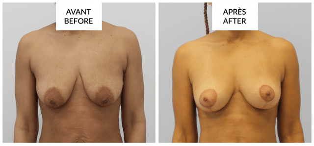 breast augmentation with fat grafting before and after phi surgery