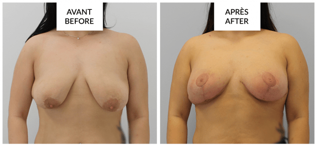 montreal breast lift mastopexy before and after phi surgery