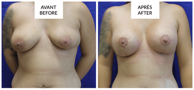 breast lift and augmentation in montreal phi surgery