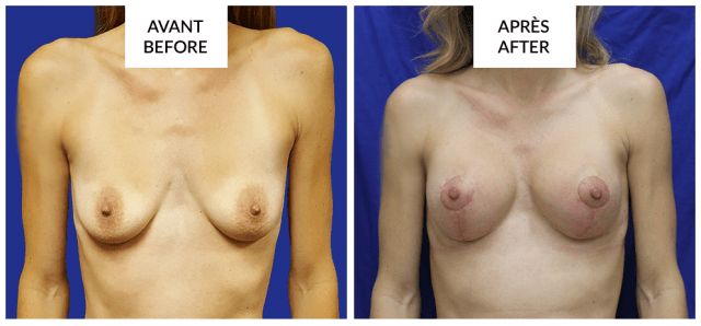 breast lift and augmentation before after in montreal phi surgery