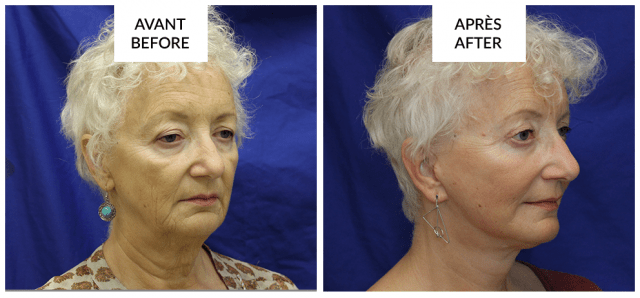 best facelift surgery before and after phi surgery