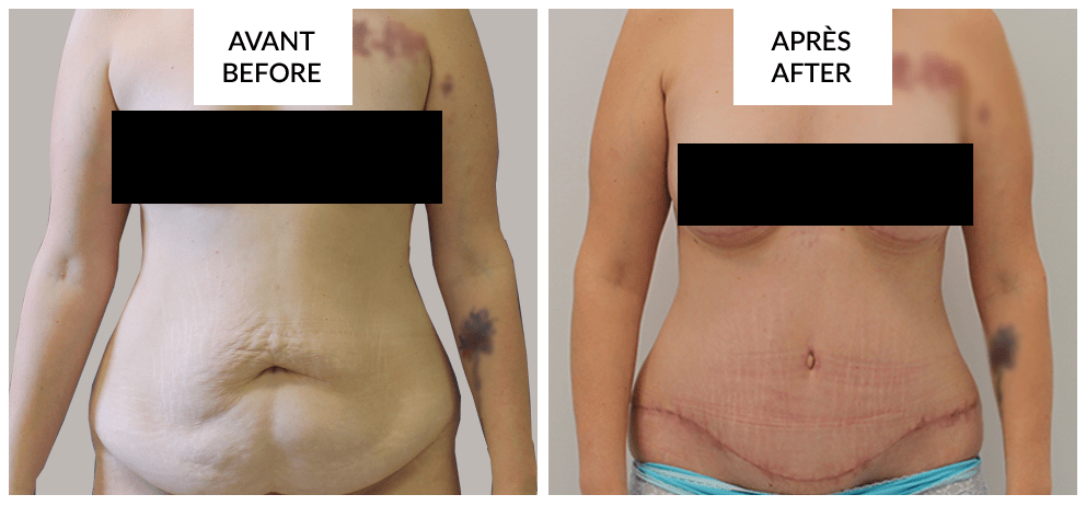 tummytuck before and after