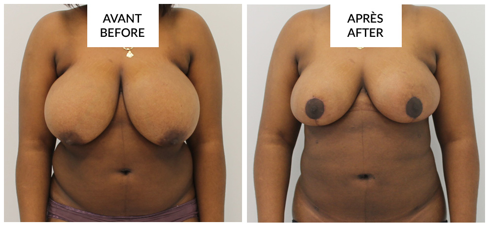 montreal breast reduction phi surgery