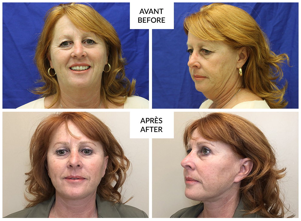 facelift surgery in montreal before and after phi surgery