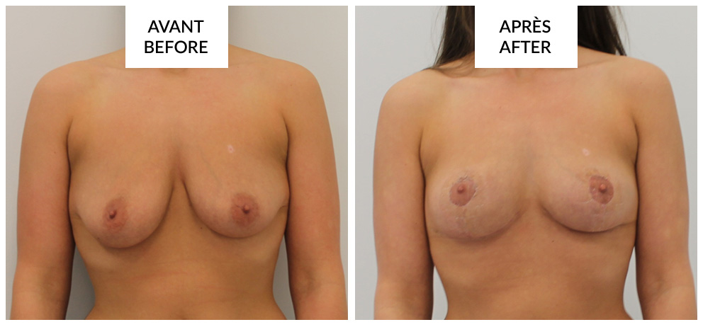 breast lift mastopexy in montreal before and after phi surgery