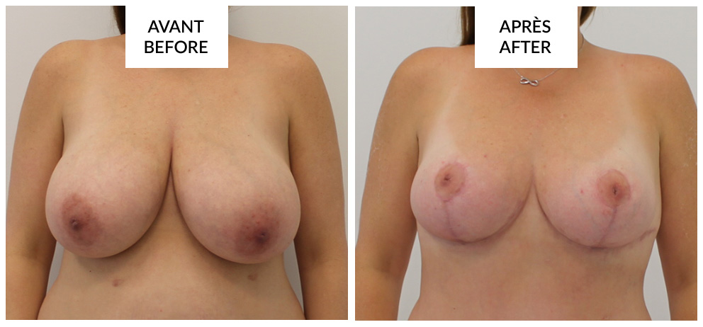 montreal breast reduction before and after phi surgery