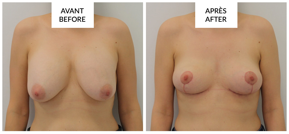 breast lift mastopexy before and after phi surgery