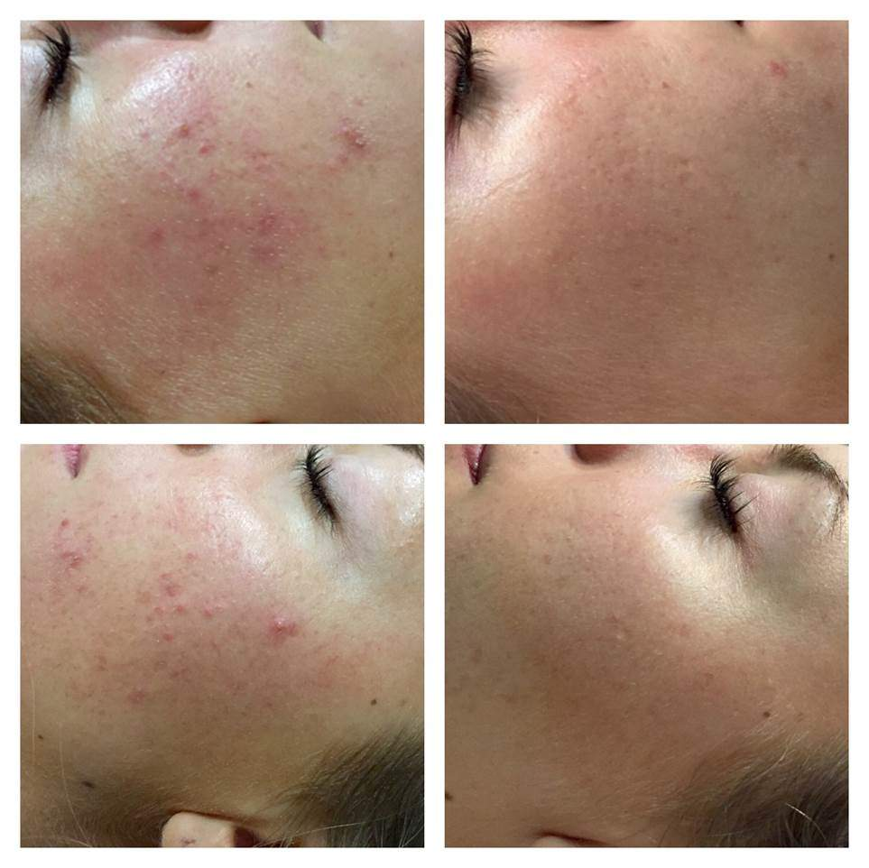 microneedling non surgical phi surgery