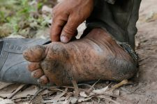 A man from Prek Russey village in Kandal's Koh Thom district last week shows sores caused by arsenicosis on his foot