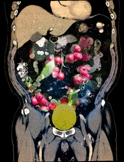 Abstract – CT scan of torso with images of crabapples in the belly area