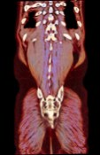 Abstract – CT scan of torso with pareidolia image of a gerboa in the belly area