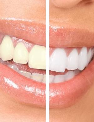 Como Clarear Dentes Amarelos Para Brancos Photofiltre Studio