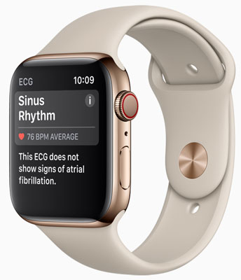 Apple Watch Series 4 (GPS + Cellular) in Gold Stainless Steel Case with Stone Sport Band: The app can detect a heart beating in a normal pattern, or if the user shows signs of AFib.