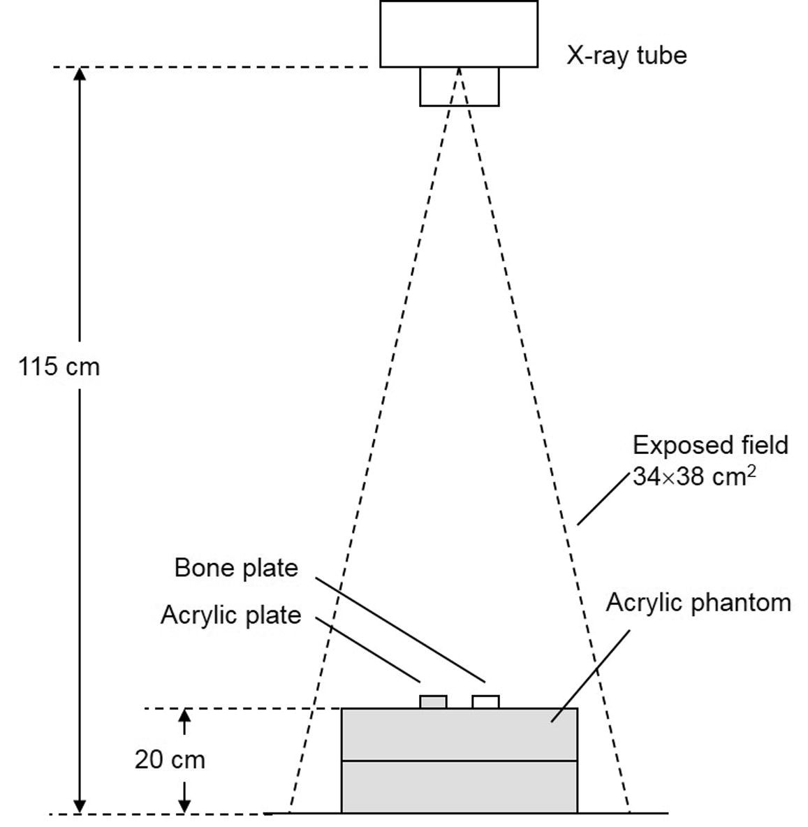 X Ray Dose Reduction Using Additional Copper Filtration