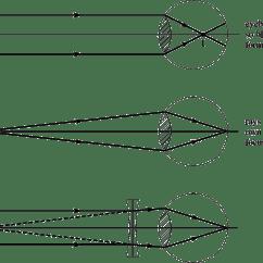 Long And Short Sighted Diagram Ac Motor Run Capacitor Wiring Pplato Flap Phys 6 4 Optical Instruments