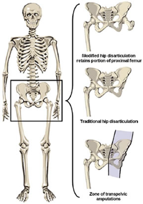 hip joint diagram labeled atp molecule principles of amputation - physiopedia