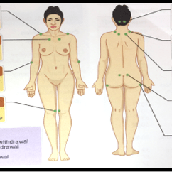 18 Tender Points Of Fibromyalgia Diagram 1998 Dodge Durango Stereo Wiring Physiopedia Acr Png