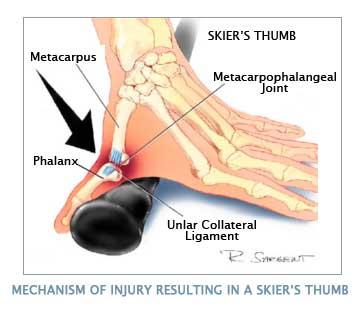 Skier39s thumb Physiopedia