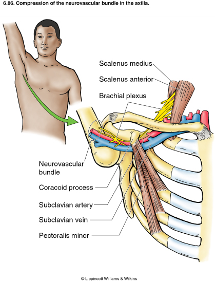 Thoracic Outlet Scalene