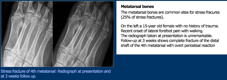 Leg and Foot Stress Fractures  Physiopedia
