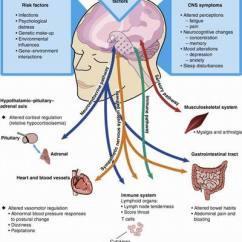 Fibromyalgia Pain Diagram Heat Pump Wiring Diagrams Chronic Fatigue Syndrome - Physiopedia